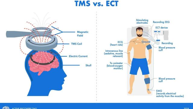 Comparing ECT and TMS Treatments for Depression